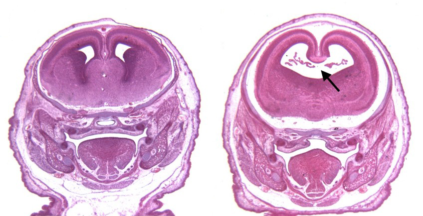 (Left) The brain of a control mouse. (Right) The brain of a mouse exposed to alcohol and a cannabinoid on the 8th day of pregnancy.